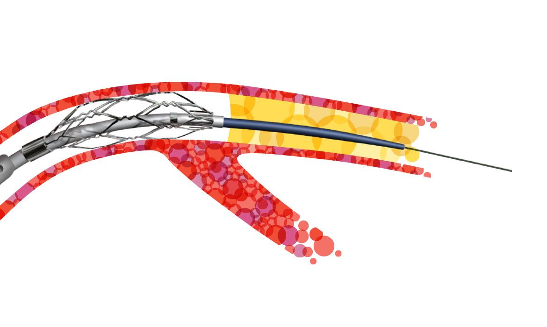 Illustration for BTG brochure featuring vascular product